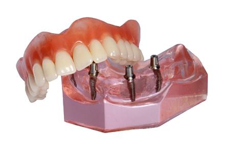 implant supported denture model Brownstown, MI